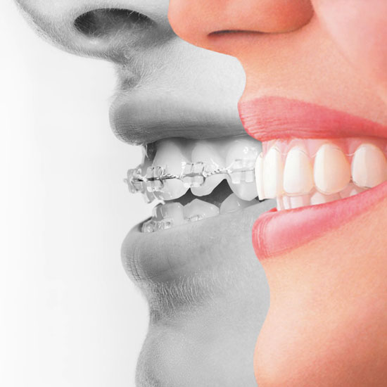 Treatment Costs | Specialist Orthodontist Christchurch